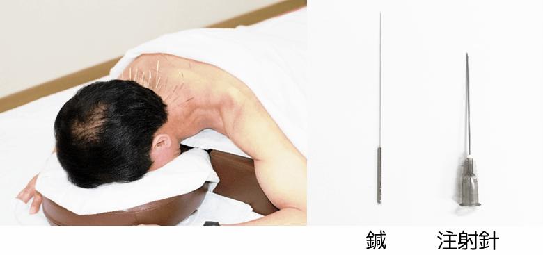 注射の「針」と鍼治療の「鍼」は全く別のモノ
